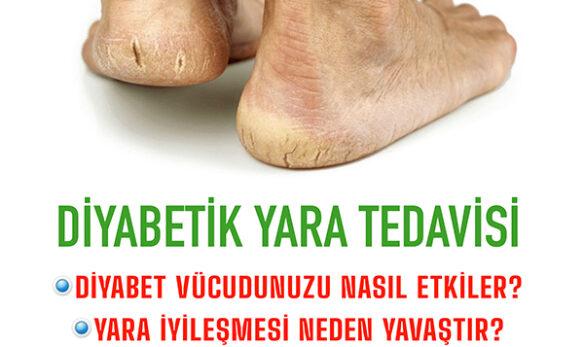 diyabetik yara tedavisi natural klinik